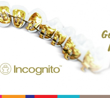Incognito Lingual Ortodonti - Görünmez Diş Telleri