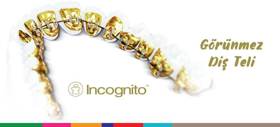 Incognito Lingual-Görünmez Diş Telleri